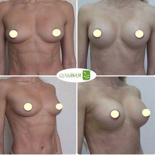 Эндоскопическое увеличение груди, круглые импланты 295гр, спустя 1 неделю после операции