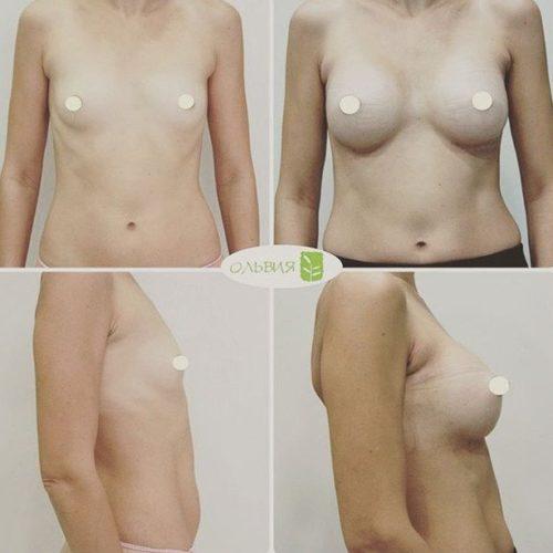Эндоскопическое увеличение, круглые импланты 255гр, 2 недели после операции