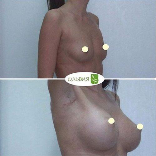 Эндоскопическое увеличение, круглые импланты, спустя 1 месяц