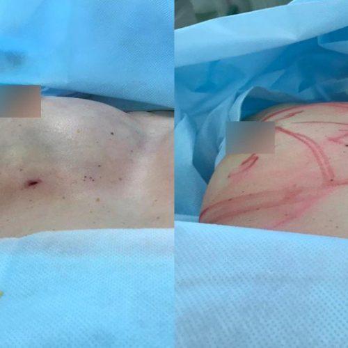 Липофилинг груди, сразу после операции
