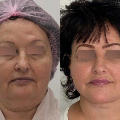 Подтяжка нижней две трети лица и шеи, платизмопластика и липосакция шеи, спустя 3 месяца