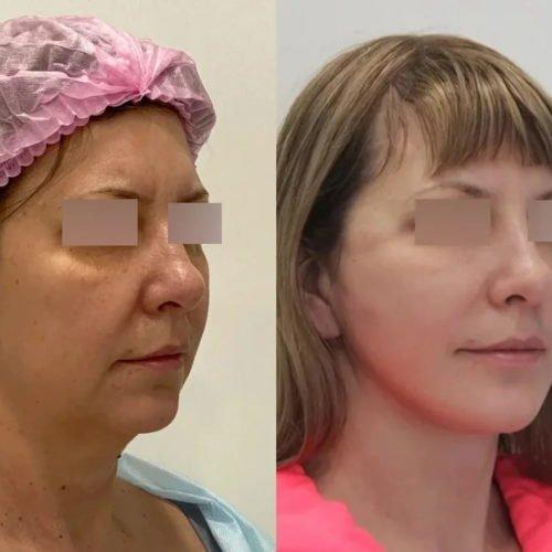Подтяжка нижней две трети лица и шеи, платизмопластика, липосакция подбородка, спустя 1 месяц