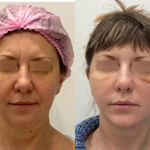 Подтяжка нижней две трети лица и шеи, платизмопластика, липосакция подбородка, спустя 2 недели