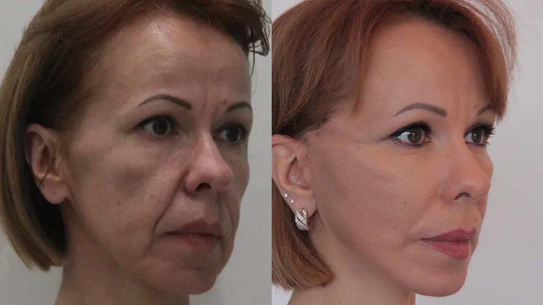 Подтяжка нижней две трети лица и шеи, спустя 2 недели