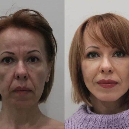 Подтяжка нижней ⅔ лица и шеи и липофилинга скул, спустя 3 месяца