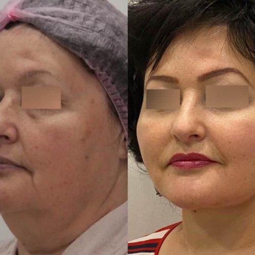 Подтяжка нижней ⅔ лица и шеи, платизмопластика + липосакция шеи, спустя 6 месяцев