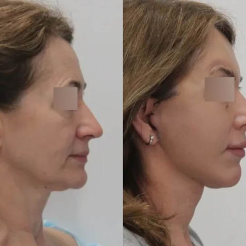 Подтяжка нижней ⅔ лица, круговая блефаропластика, хейлопластика, липофилинг лба и скул, лазерная шлифовка