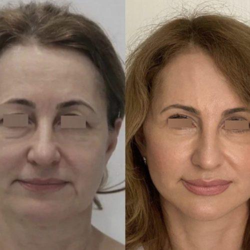 Подтяжка нижней ⅔ лица, круговая блефаропластика, хейлопластика, липофилинг лба и скул, лазерная шлифовка, спустя 3,5 месяца