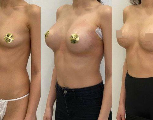Трансаксиллярный доступ увеличения груди, импланты 325гр, спустя 1, 2 недели
