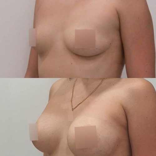 Трансаксиллярный доступ увеличения груди, импланты 325гр, спустя 10 месяцев