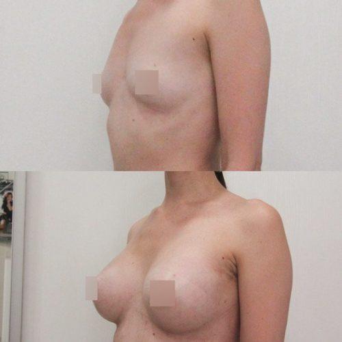 Трансаксиллярный доступ увеличения груди, импланты 325гр, спустя 2 недели