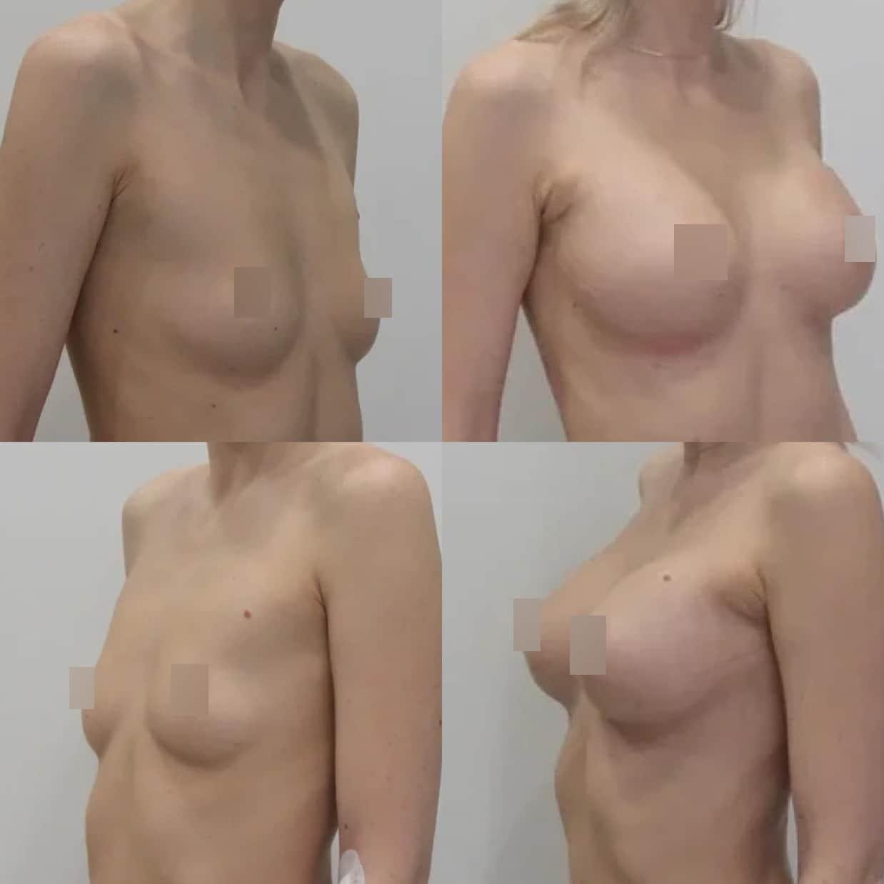Увеличение груди имплантами 325 гр, трансаксиллярный доступ, спустя 1 месяц
