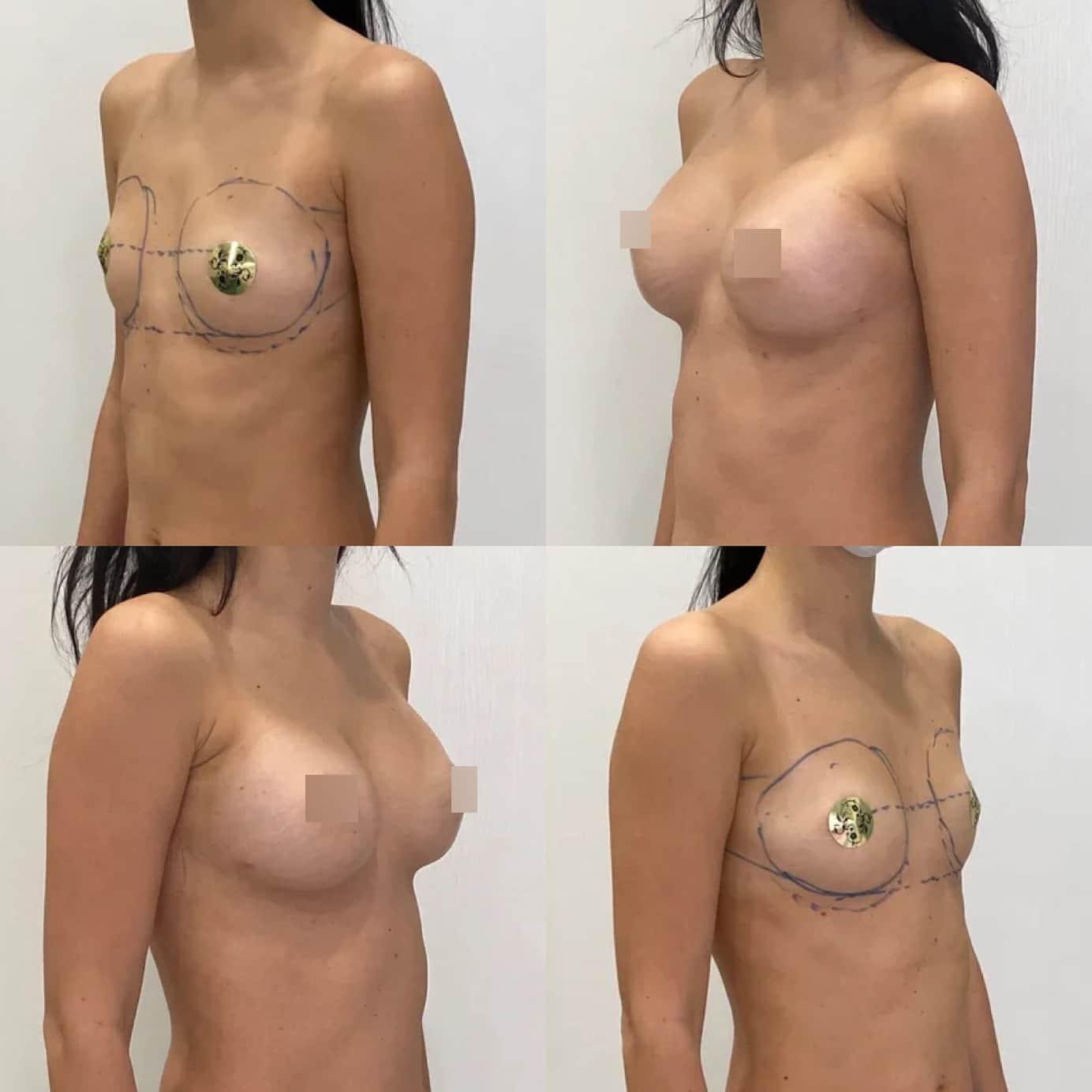 Увеличение груди имплантами 325 гр, трансаксиллярный доступ, спустя 2 недели