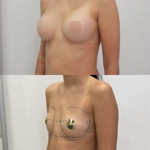 Увеличение груди имплантами 325гр, трансаксиллярный доступ, спустя 3 месяца