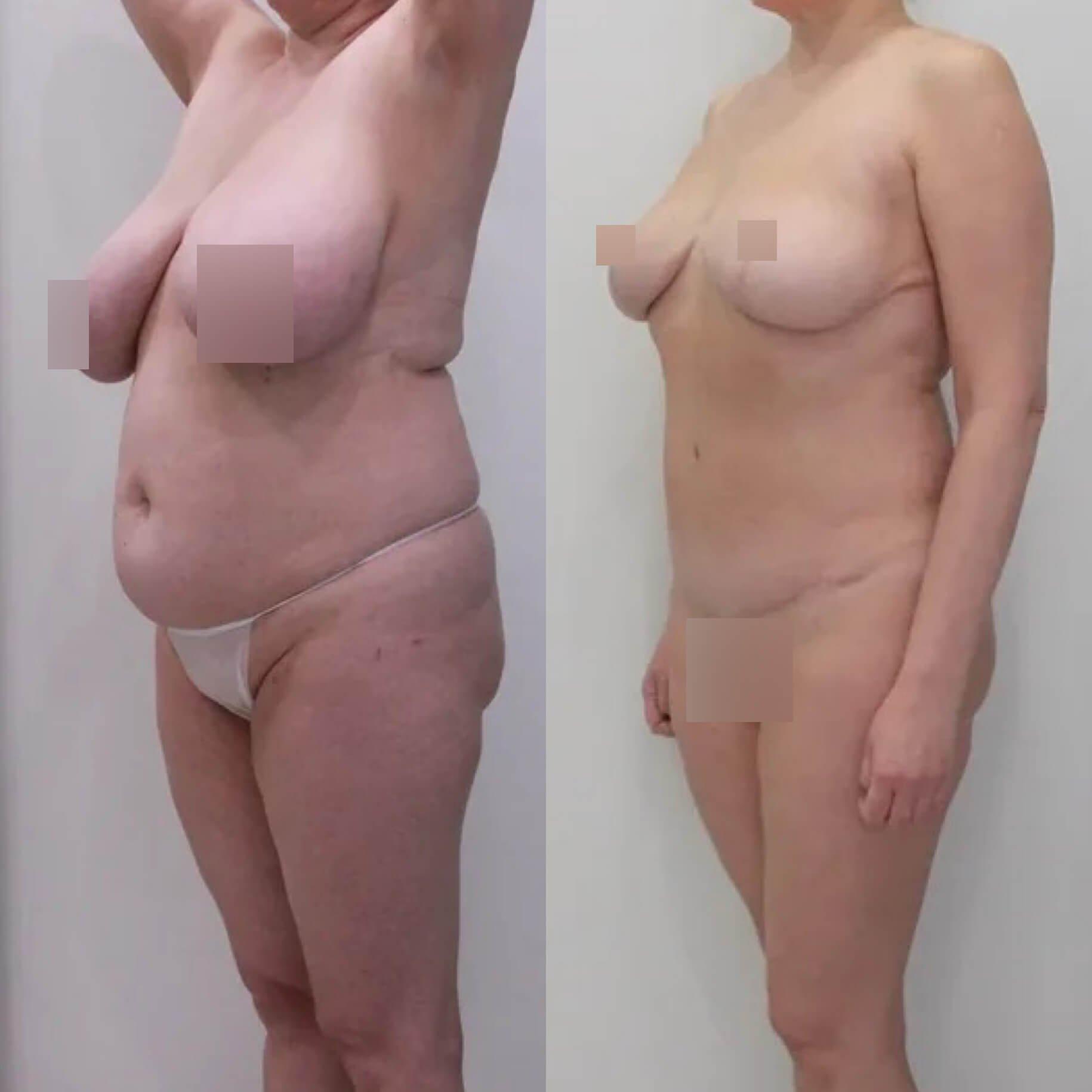 Абдоминопластика, липосакция живота, поясницы, подтяжка груди, спустя 9 месяцев