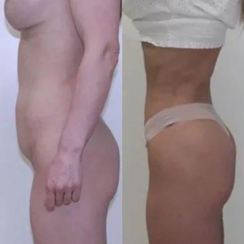Абдоминопластика, спустя 11 месяцев