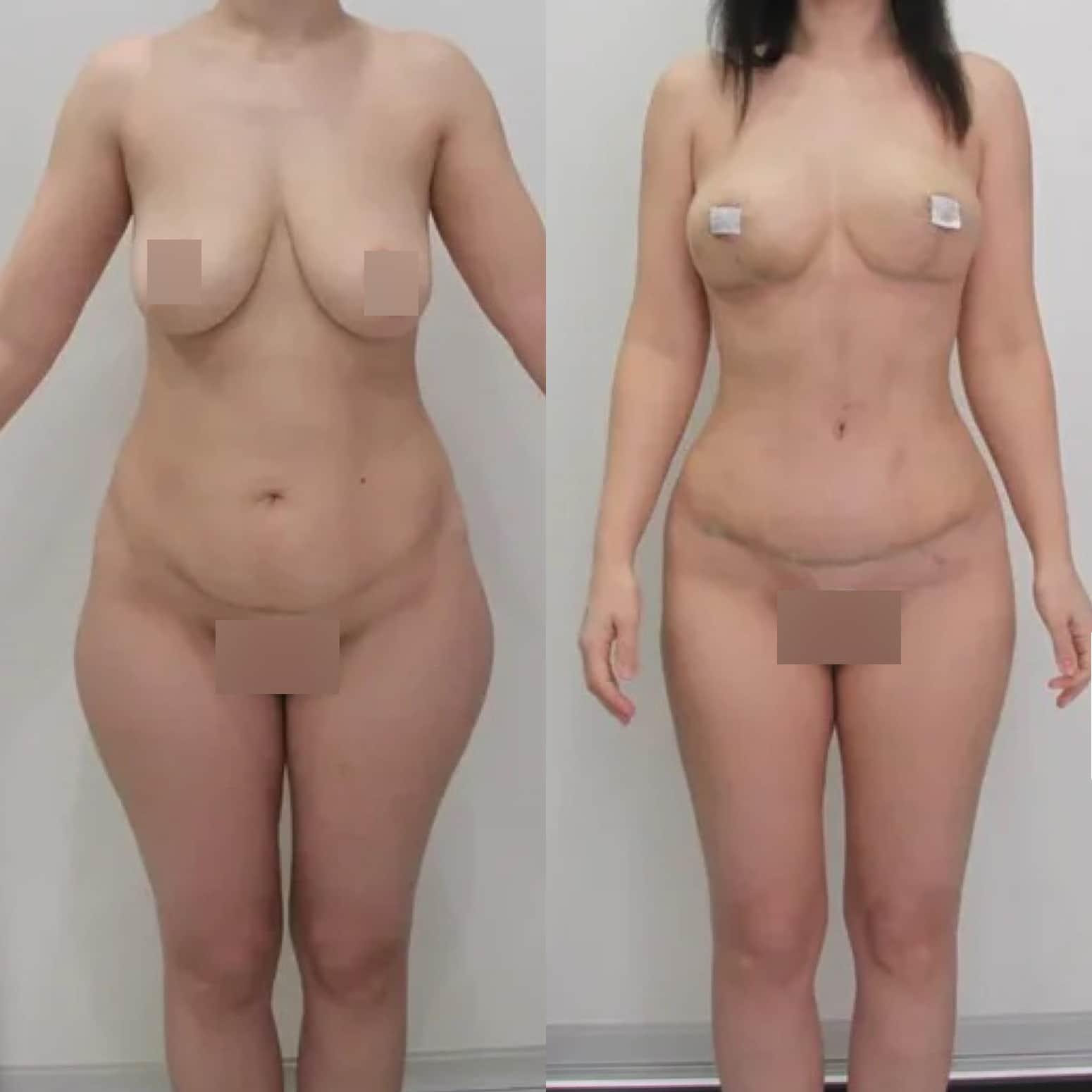 Редукция груди, абдоминопластика, липосакции галифе, живота, поясницы, спустя 3 недели